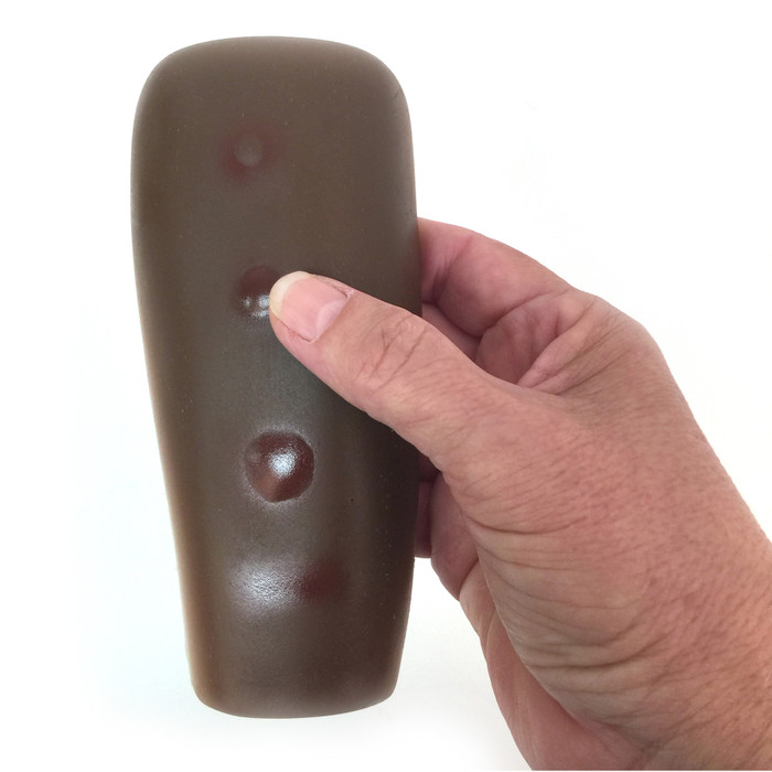 Palpable TB Testing Arm, hand holding brown arm model with 4 TB test results, Health Edco, 26001