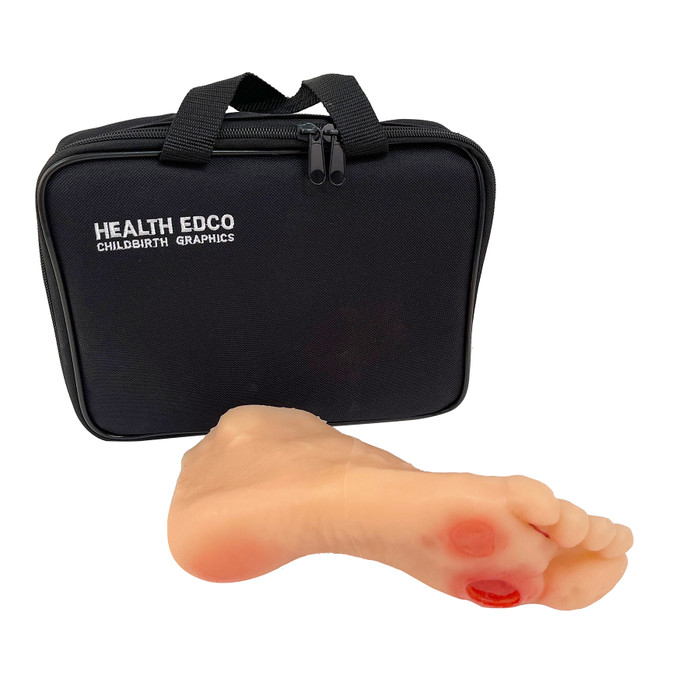 Diabetic Foot Model with case, lifelike health education model showing diabetic foot damage and ulcers, Health Edco, 26101