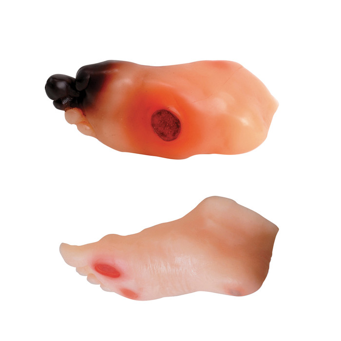diabetic foot model set, mild and severe ulcer, Charcot foot deformity, sever swelling, redness, gangrene, amputated toe, managing blood glucose, Health Edco, 26160