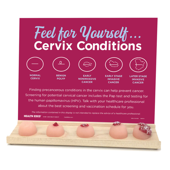 Feel for Yourself: Cervix Conditions Display for health education by Health Edco with models of cervical conditions, 26805