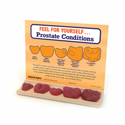 Prostate Conditions Display, realistic look and feel, prostate conditions, cancer, palpable models on wood tray, Health Edco, 26807