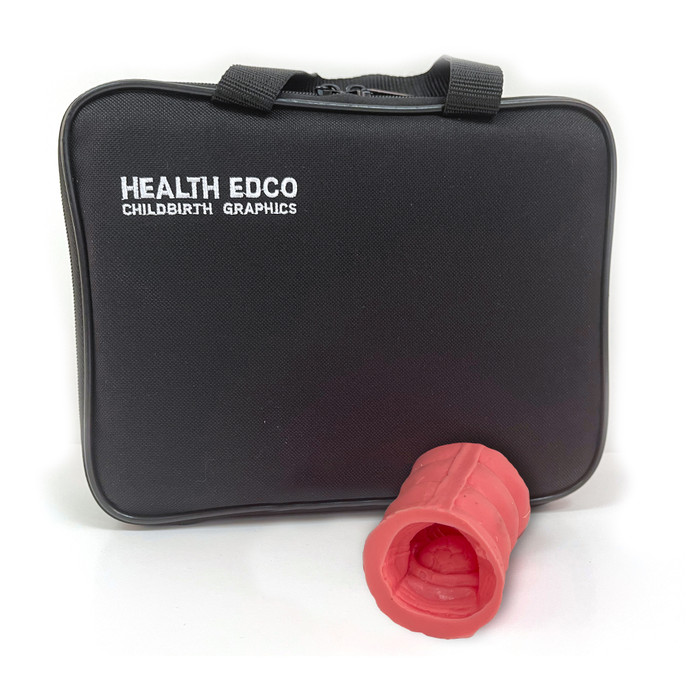 Colorectal Polyp Model with carrying case, health education anatomy model showing colon section, Health Edco, 26811