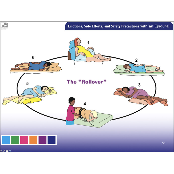Pain Medications for Labor & Birth PowerPoint, comprehensive 66 frame pain medication for labor and birth presentation by Penny Simkin, safety precautions with an epidural, Childbirth Graphic, 30861