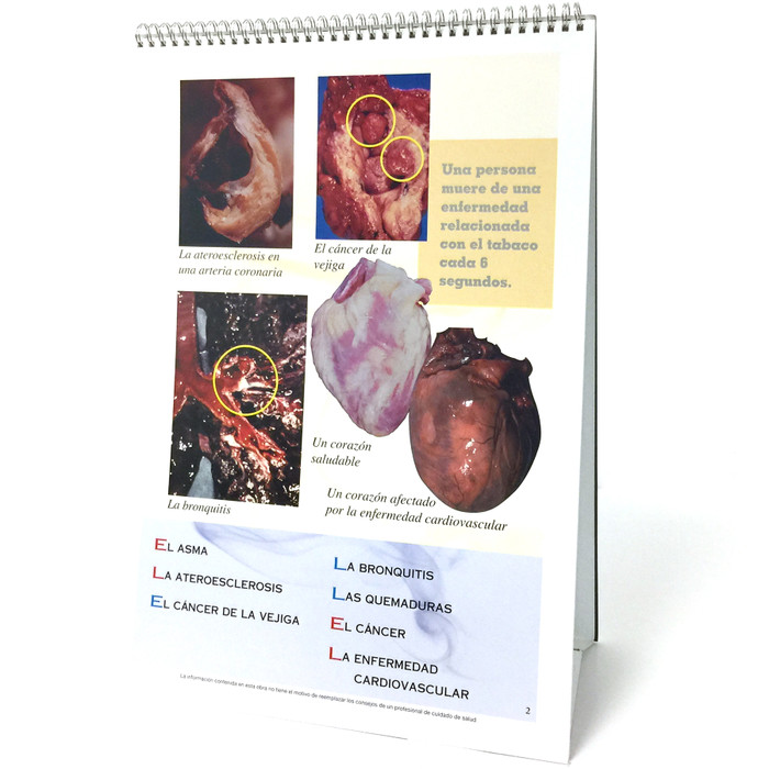 The ABCs of Smoking Flip Chart English/Spanish, 6-panel spiral-bound flip chart panel 2 Spanish side, photos of organs affected by smoking, Health Edco, 43106