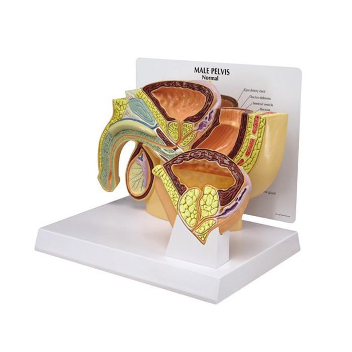Male Pelvis BPH 3D Model, inserts normal prostate and BPH midsagittal model, Health Edco, 50320