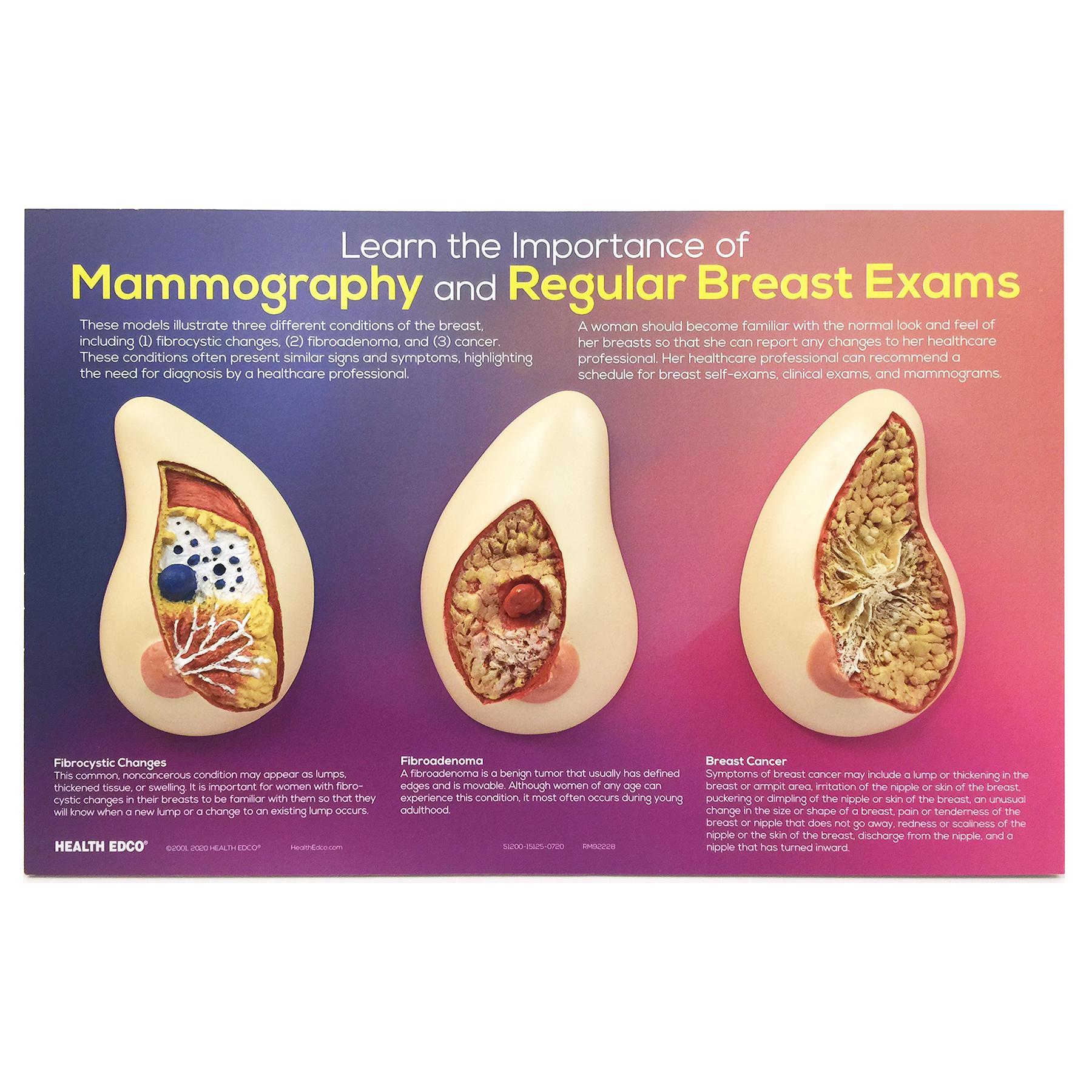 Uterus-Ovary Model | Health Edco | Health Education Models