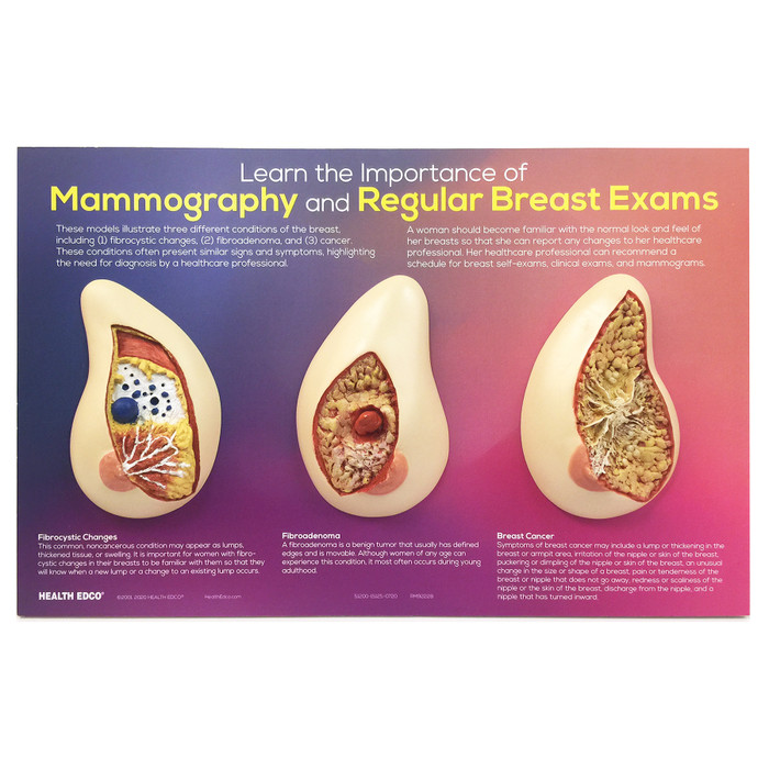 Learn the Importance of Mammography and Regular Breast Exam 3D breast conditions painted model, Health Edco, 51200