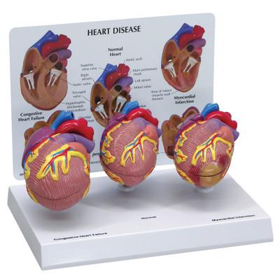Heart Disease Model Set | Health Edco | Anatomical Models