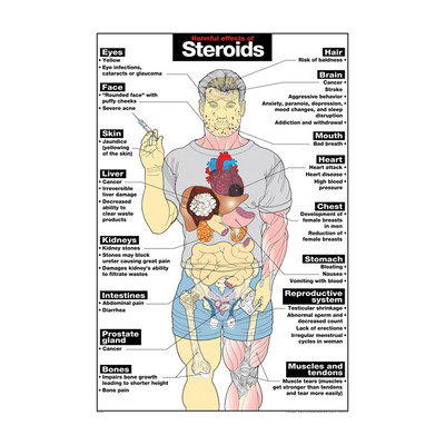 Harmful Effects of Steroids Chart, illustrated anatomical chart with impact on organs, Health Edco, 70078