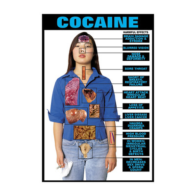 Cocaine Chart, clothed female with health conditions superimposed on body, Health Edco, 70931