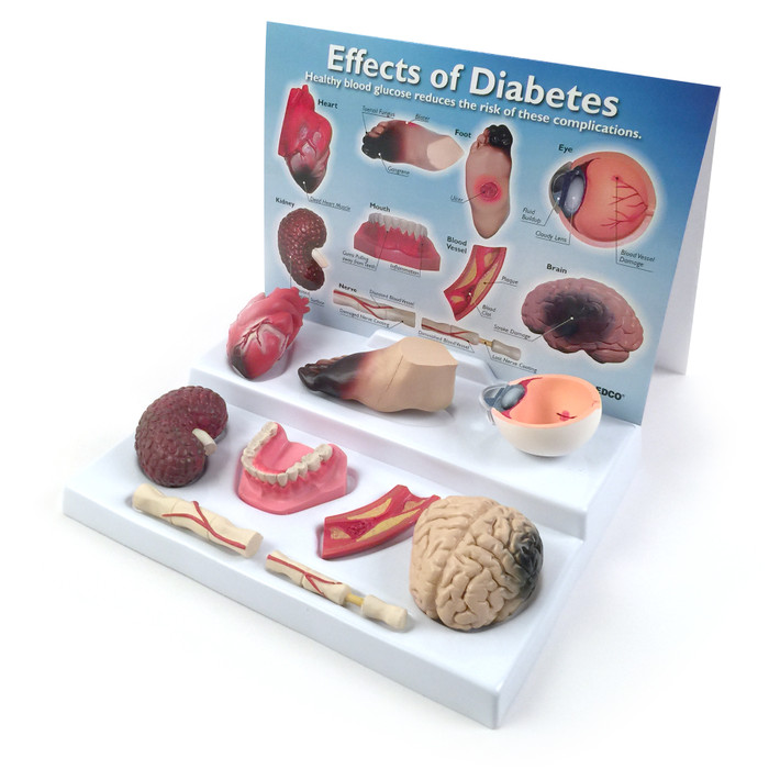 Effects of Diabetes Display for health education from Health Edco with organ models of uncontrolled diabetes effects, 78792