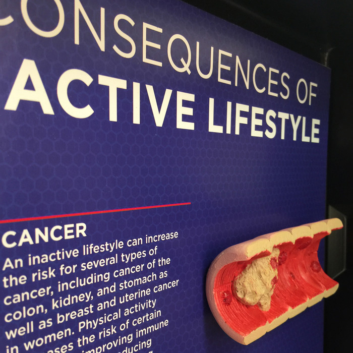 Inactive Lifestyle Consequences 3-D Display by Health Edco, educational colon cancer model from a sedentary lifestyle, 78854