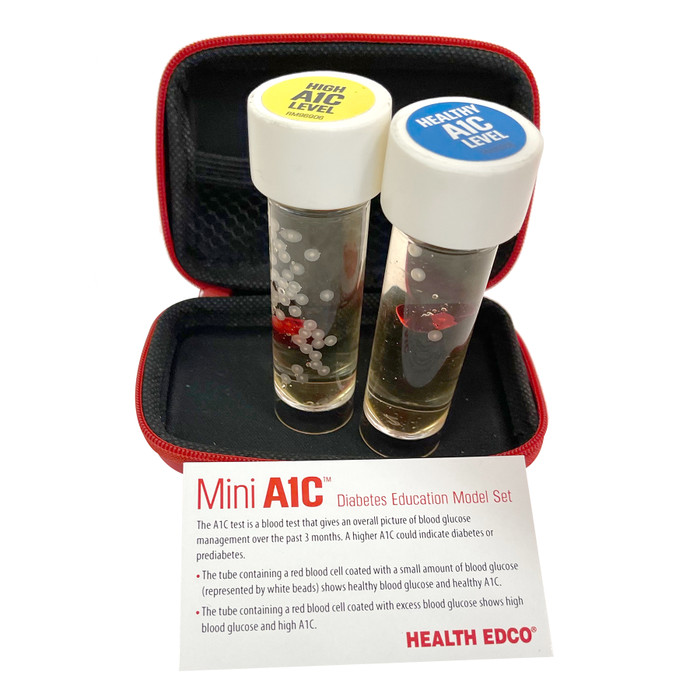 Mini A1C Diabetes Education Model Set with test tubes showing healthy A1C and high A1C levels, Health Edco, 79820