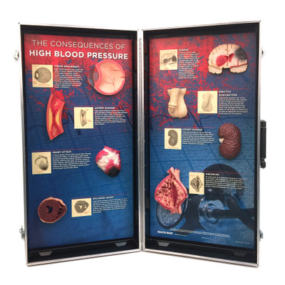 High Blood Pressure Consequences 3D Display from Health Edco for heart health education with hypertensive organ models, 78927