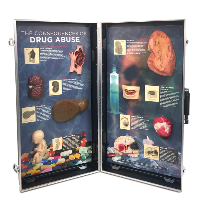 Drug Abuse Consequences 3-D Display from Health Edco with 3-D organ models to depict the health effects of drug abuse, 78928