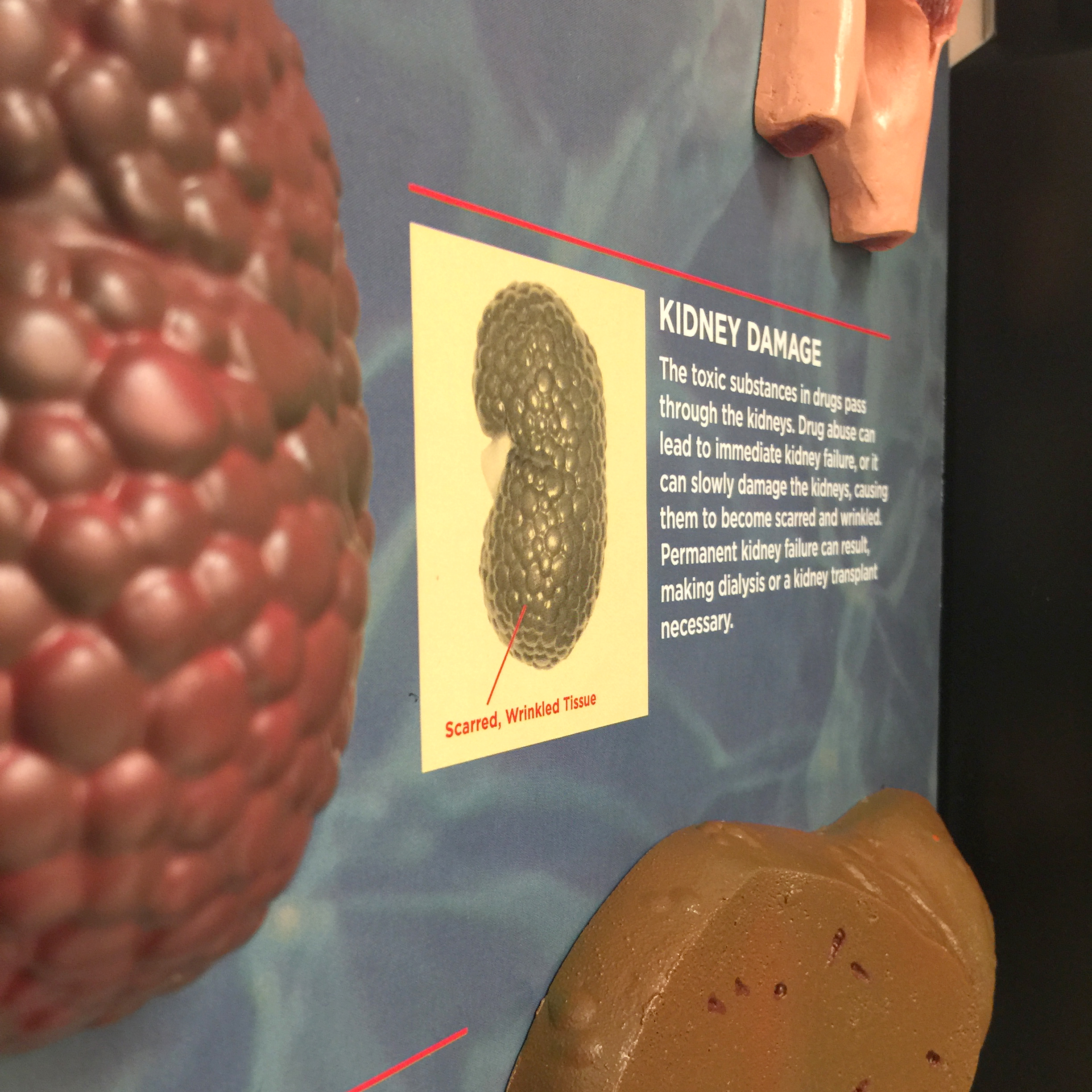 Health Consequences of Drug Abuse 3-D Display | Health Edco