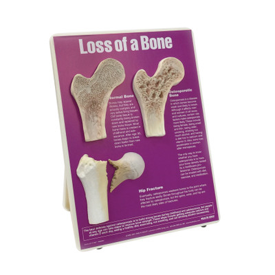 Health Edco; Osteoporosis education; Loss of a Bone Easel Display; 79143;
