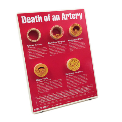 Death of an Artery Easel Display for heart health education by Health Edco with artery models depicting plaque buildup, 79149