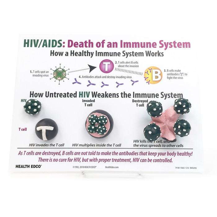 HIV AIDS Death of an Immune System Easel Display for health education with models from Health Edco, 79180