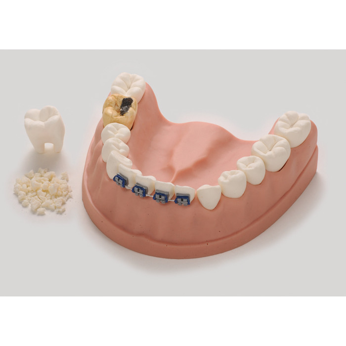 Dental Health Model, dental education model of lower jaw with teeth, braces, cavity, and simulated plaque, Health Edco, 79229