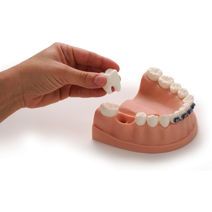 Dental Health Model, dental health education model of lower jaw, teeth, and gums showing removable molar, Health Edco, 79229