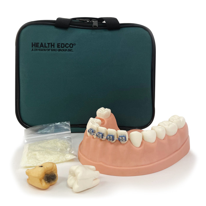 Dental Health Model, dental health education model of lower jaw, teeth, and gums with carrying case, Health Edco, 79229