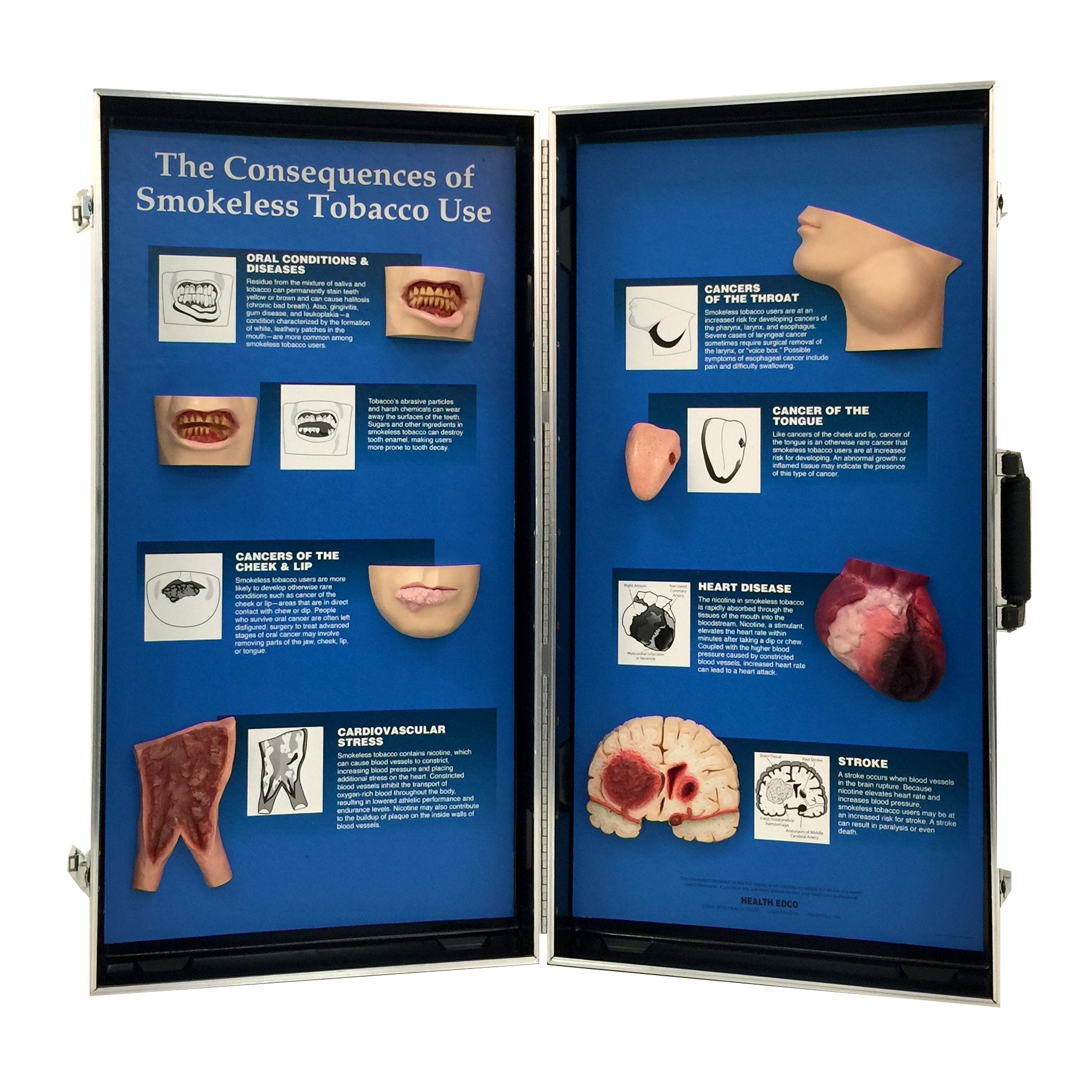 Consequences Of Smokeless Tobacco 3-D Display | Health Edco