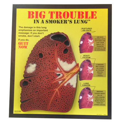 Big Trouble in a Smoker's Lungs 3D Display, oversized rough 3D lung model diagram of conditions, Health Edco, 79670
