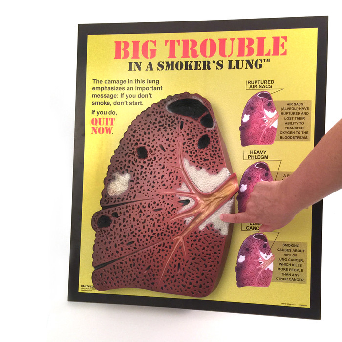 Big Trouble in a Smoker's Lungs 3D Display, oversized rough 3D lung model with hand for size relationship, Health Edco, 79670
