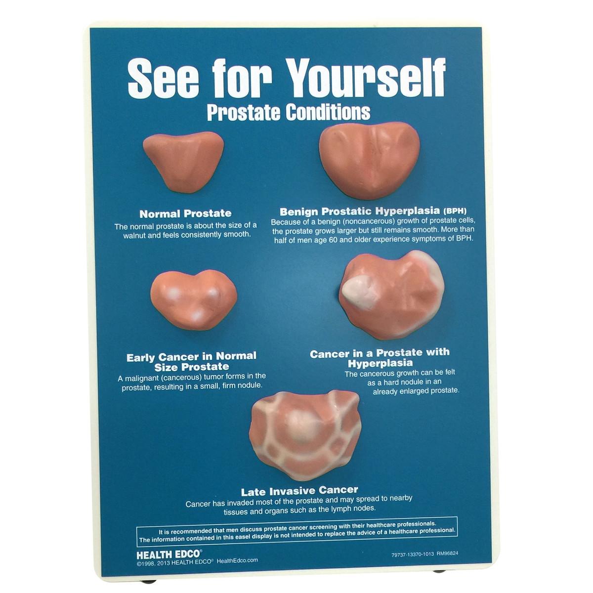 Health Edco; prostate exam; PSA; prostate cancer;