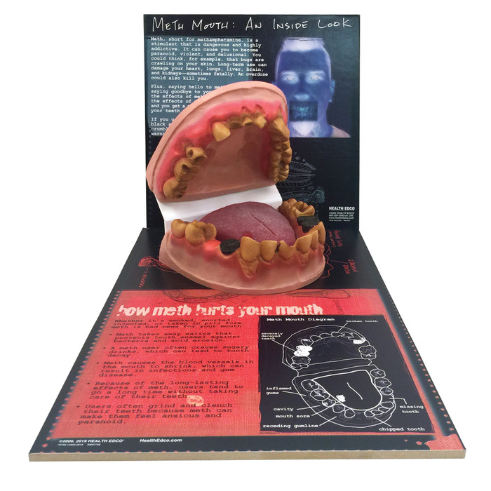 Meth Mouth: An Inside Look Display for health education by Health Edco, mouth model showing oral damage of meth abuse, 79758