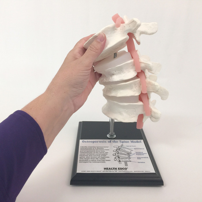 Osteoporosis of the Spine Model, vertebrae model on stand hand removing parts diagrammed label, Health Edco, 84078