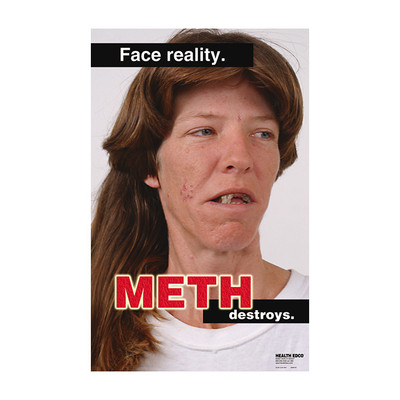 Face Reality Meth Destroys Poster, close-up of woman affected by meth with facial scars & tooth decay-loss, Health Edco, 89168