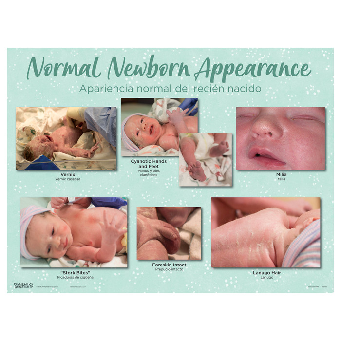 Normal Newborn Appearance Chart of the Newborn Chart Set by Childbirth Graphics for new parent and education, 90160