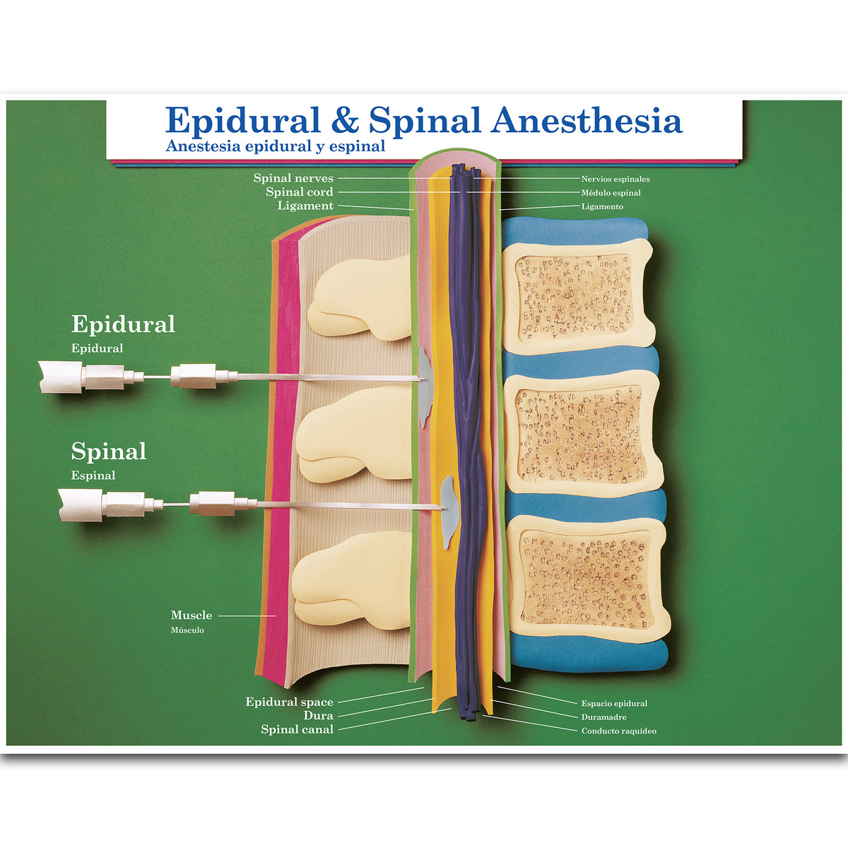 epidural spinal anesthesis Spinal and epidural anesthesia fall into the category of neuraxial anesthesia neuraxial refers to the spinal column and related structures broadly, epidurals and spinals may be categorized as regional anesthetics, as well, since they do numb a region of the body by targeting nerves that supply that area.