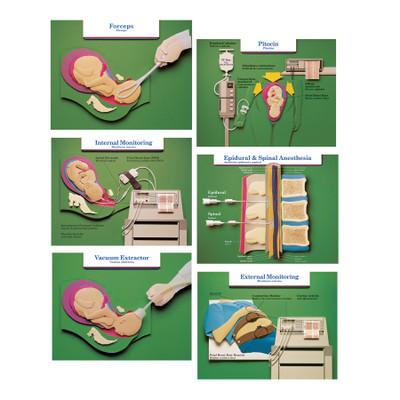 Epidural & Spinal Anesthesia Chart   Childbirth Graphics