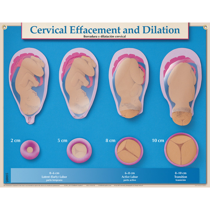 Cervical Effacement And Dilation Chart