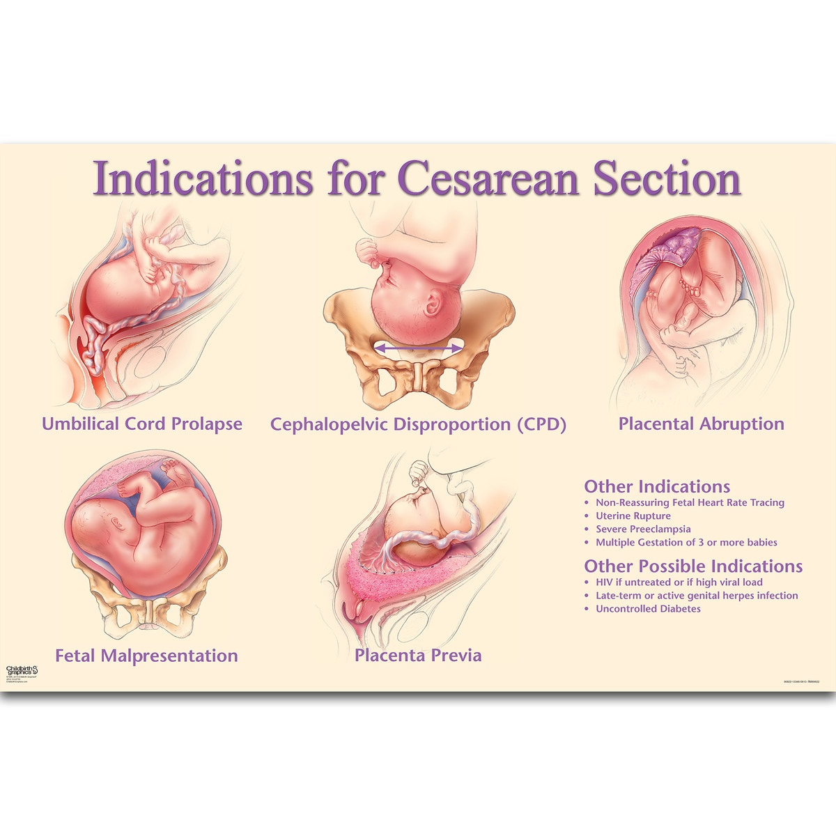 a cesarean delivery Appendix a: codes to identify deliveries 59622 cesarean delivery, including postpartum care drg codes codes description 370-375 c-section or vaginal delivery.