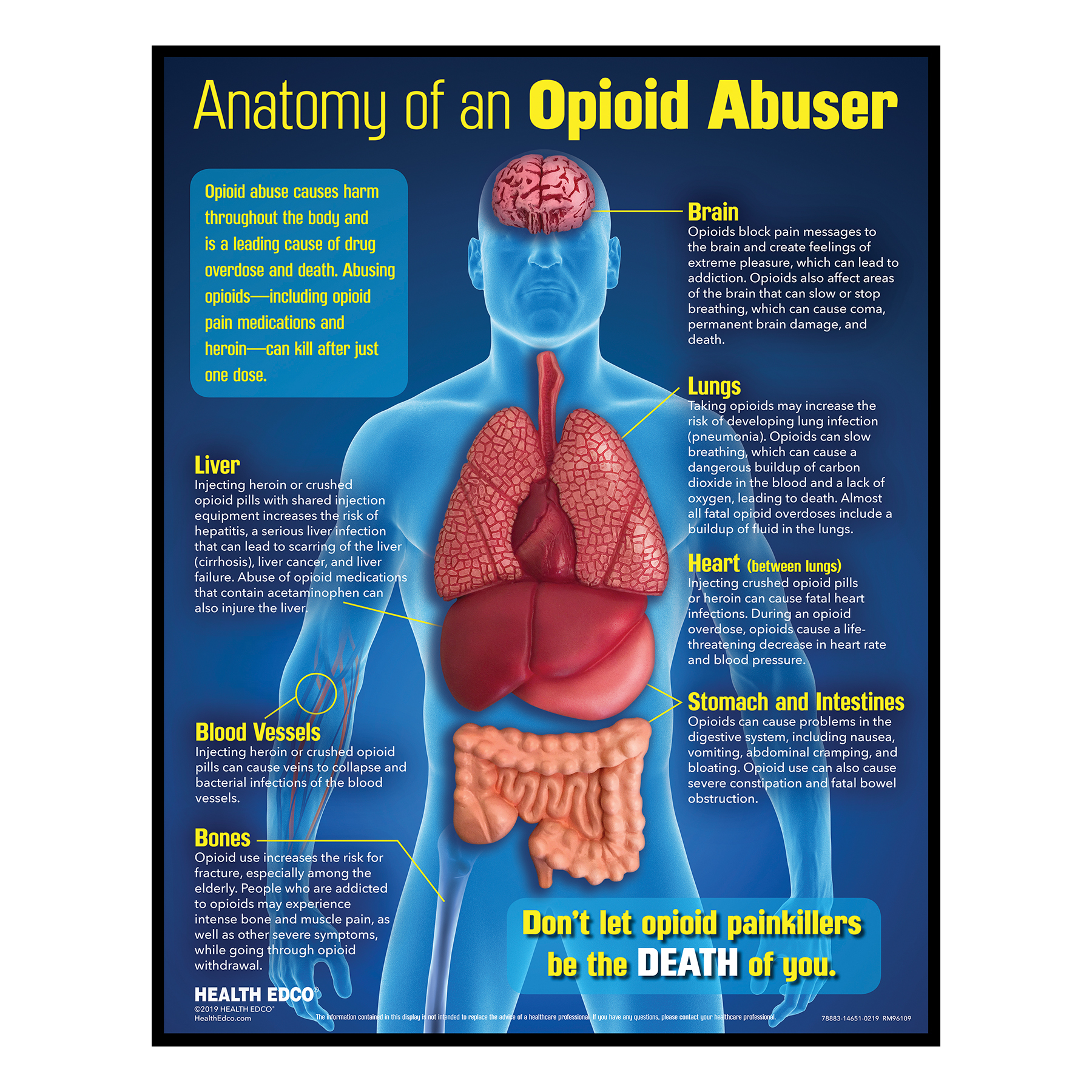 Anatomy of an Opioid Abuser Drug Education Display with 3-D Models