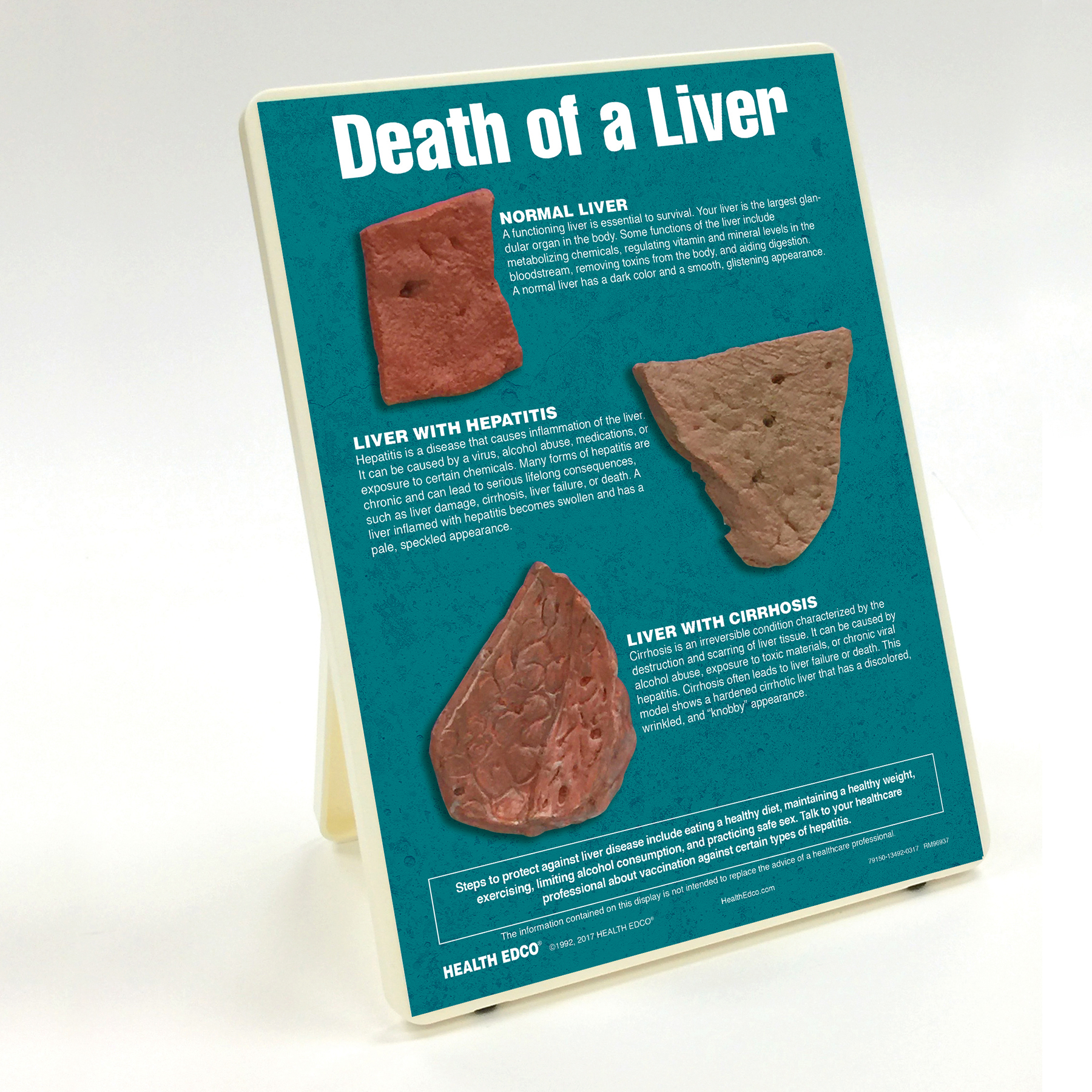 Death of a Liver Easel Display with models of a healthy, hepatic, and cirrhotic liver
